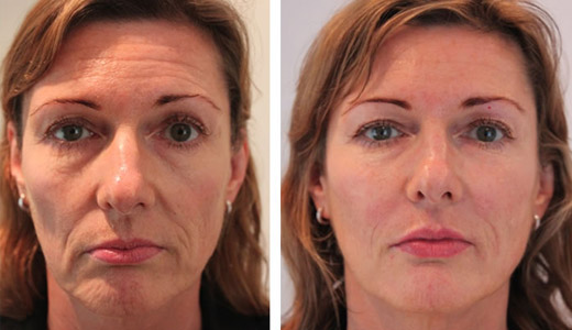 Juvederm Voluma® to restore facial volume and give your face a softer, more youthful appearance